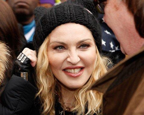 59-летняя Мадонна разочаровала фанатов неподвижным лицом-маской