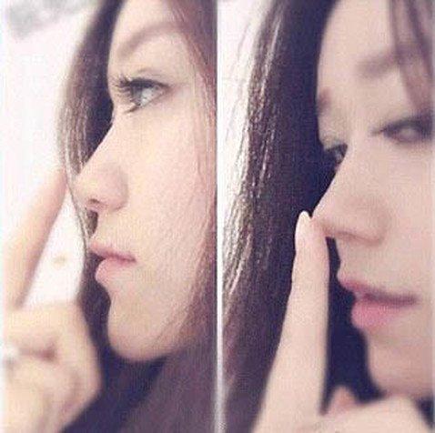 Азиатки рискуют здоровьем, самостоятельно исправляя форму носа с помощью «распорок»