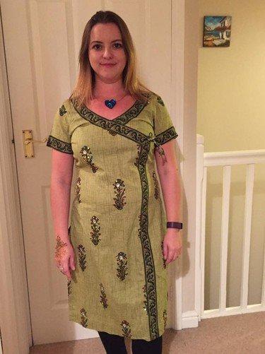Из-за неудачного кесарева сечения британка даже через 6 лет после родов выглядит беременной