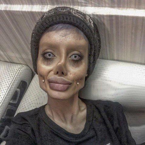 Девушка, которая сделала пластику, чтобы быть похожей на Джоли, призналась, что всех обманула