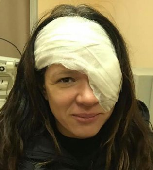 Руслана перенесла серьезную операцию на глазу и вышла на сцену с открытой раной (фото)