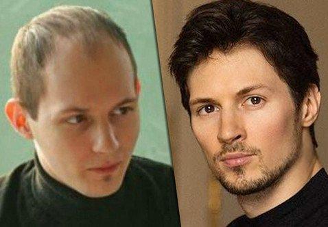 Пользователи Сети уверены, что Павел Дуров сделал наращивание или пересадку волос