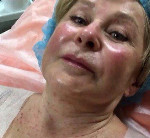 В прямом эфире: 75-летняя Ангелина Вовк показывает, как делает себе инъекции ботокса