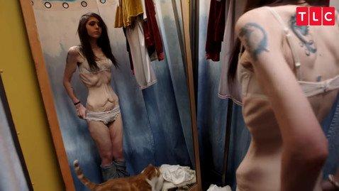 В США запустили шоу о людях, которые потеряли десятки килограммов и борются с лишней кожей