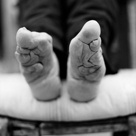 Золотое копытце: шокирующие фотографии последствий «бинтования ног»в Китае