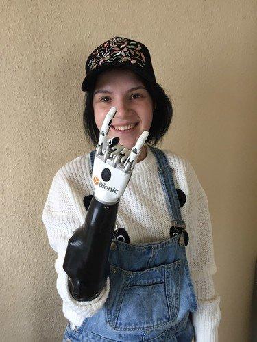 Россиянке, лишившейся кистей рук из-за ревности мужа, сделали протезы