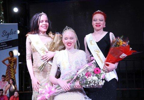 В Зимбабве прошел первый в мире конкурс красоты среди девушек-альбиносов