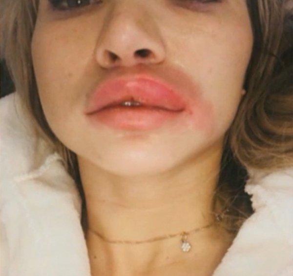 У россиянки лопнули губы после неудачной инъекции филлеров