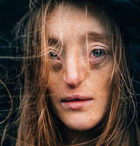 Девушка с редким лицевым дефектом стала моделью