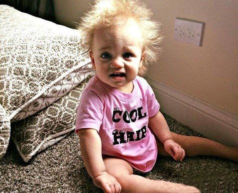 «Девочка-Эйнштейн» с редчайшей генной мутацией волос растрогала пользователей Сети по всему миру