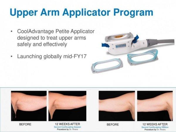 Технология CoolSculpting — аппаратная альтернатива липосакции