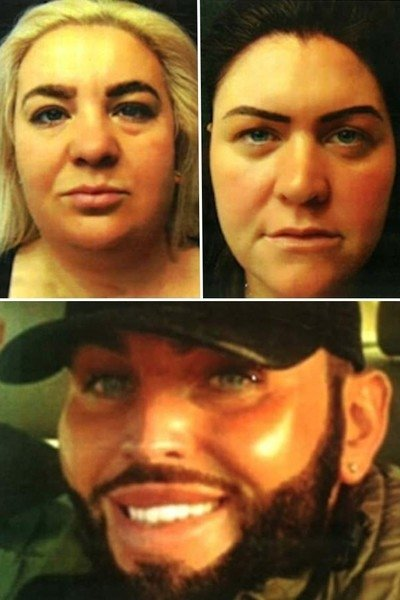Ботокс-беглецы: британская полиция ищет мошенников, которые не расплатились за неоднократные инъекции красоты