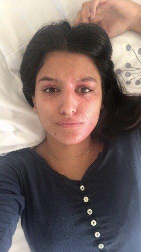 Жертва кислотной атаки спустя год после трагедии решилась опубликовать снимок без макияжа